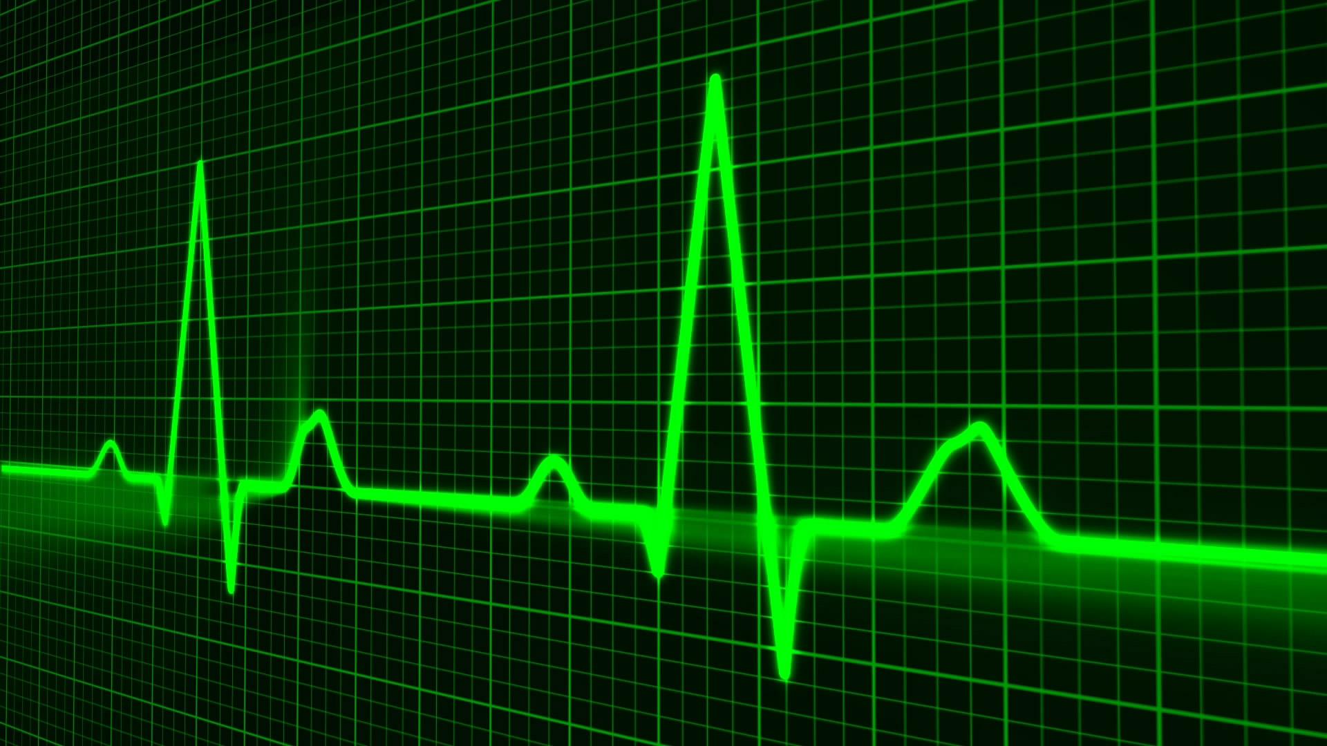 התקף לב בעבודה
